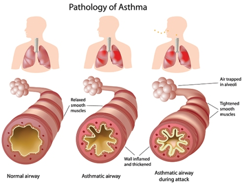 What is asthma? - Laura Spoonie